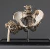 Osteosarkom; Bild 1