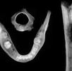 Knochenmarksentzündung an den Skelettresten eines 8–10-jährigen Kindes; Bild 2
