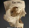 Osteom in der Augenhöhle; Bild 0