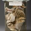 Herzaneurysma; Bild 0