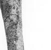 Chronischer Vitamin-C-Mangel an den Skelettresten eines 6–7-jährigen Kindes; Bild 3