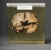 Gehirn mit Schussverletzung; Bild 0