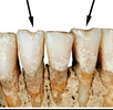 Zähne als Werkzeuge; Bild 0