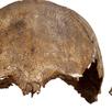 Schädeldeformation; Bild 1