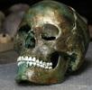 Grünverfärbung eines bronzezeitlichen Schädels; Bild 0