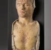 Syphilis (Lues) am Kopf und am Stamm; Bild 0