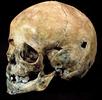Trepanation am Schädel eines Kindes; Bild 0