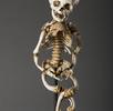 Skelett mit Zeichen von Rachitis; Bild 1