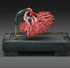 Nierenarterien; Bild 0