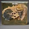 Lungenplombe bei einer Tuberkuloseerkrankung; Bild 0