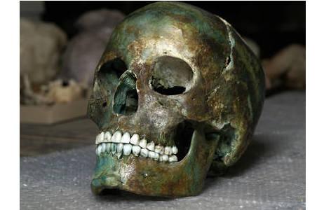 Grünverfäbung eines bronzezeitlichen Schädels aus Franzhausen/NÖ (Grab 110).; Foto: W. Reichmann, NHM Wien