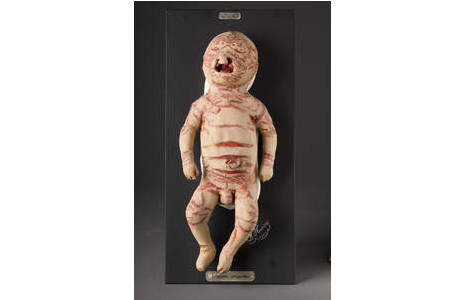 Wiener Moulage eines Babys mit angeborener Ichtyose; Foto: W. Reichmann, NHM Wien