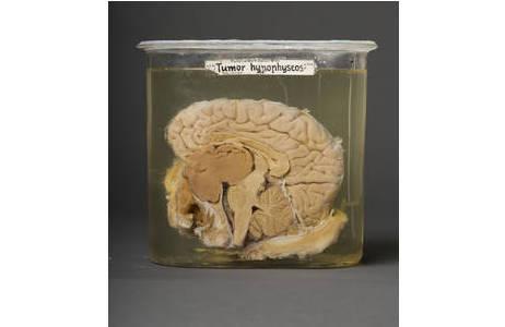 ängsschnitt durch ein menschliches Gehirn mit ausgeprägtem Hypophysentumor (braun); Foto: W. Reichmann, NHM Wien