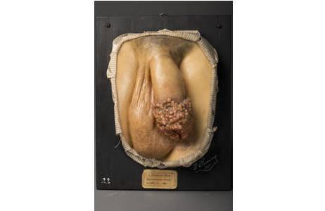 Moulage eines seltenen Peniskarzinoms; Foto: W. Reichmann, NHM Wien