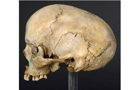 Schädel mit vorzeitigem Nahtverschluss der Sutura sagittalis (Pfeilnaht); Foto: W. Reichmann, NHM Wien