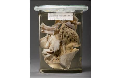 Feuchtpräparat eines Herzmuskels mit einem Aneurysma in der Kammertrennwand; Foto: W. Reichmann, NHM Wien