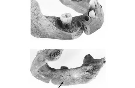 Außen- und Innenseite des rechten Unterkieferastes mit taschenförmigem Knochenabbau); Foto: W. Reichmann, NHM Wien