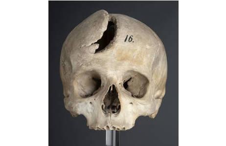 Schädel mit einer Säbelhiebwunde am Stirnbein; Foto: W. Reichmann, NHM Wien