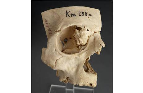 Schädelfragment mit Osteom in der rechten Augenhöhle; Foto: W. Reichmann, NHM Wien