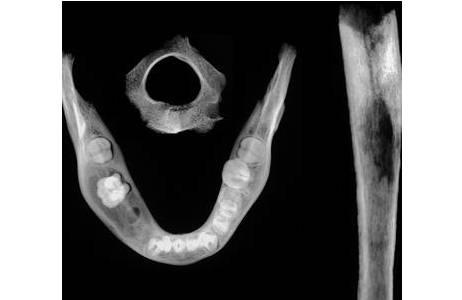 Röntgenbild der von der Knochenmarksentzündung betroffenen Knochen (2. Halswirbel, rechtes Schienbein und Unterkiefer; Foto: W. Reichmann, NHM Wien