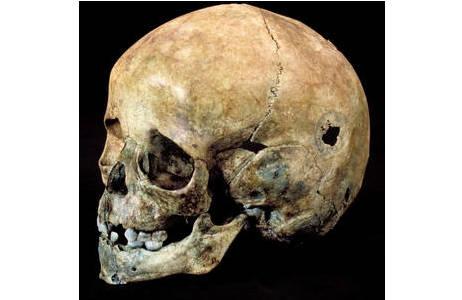 Kinderschädel aus Franzhausen (Grab 325) mit chirurgischem Eingriff (Schabtrepanation); Foto: W. Reichmann, NHM Wien