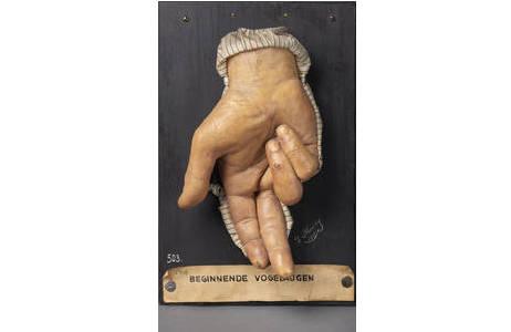 Seltene Form von Hühneraugen an den Fingern (Moulage); Foto: W. Reichmann, NHM Wien