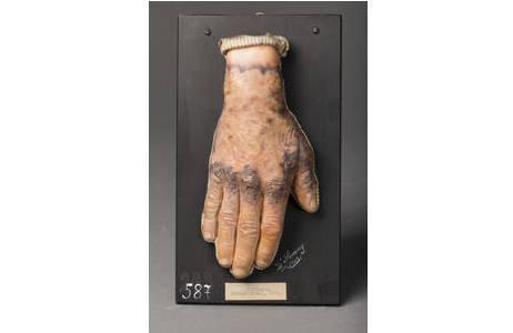 Moulage eines Handrückens mit Pellagra; Foto: W. Reichmann, NHM Wien