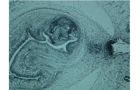 Finne des Bandwurms im Muskel des Schweines, Mikrofoto; Foto: H. Sattmann, NHM Wien