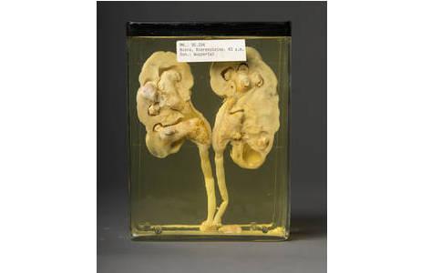 Feuchtpräparat einer Niere mit Nierensteinen; Foto: W. Reichmann, NHM Wien