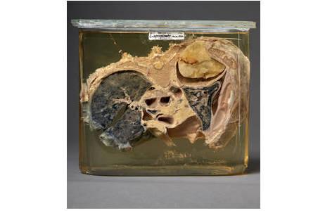 Querschnitt durch einen Oberkörper mit Lungenteilen und Lungenplombe aus Paraffin (gelb); Foto: W. Reichmann, NHM Wien