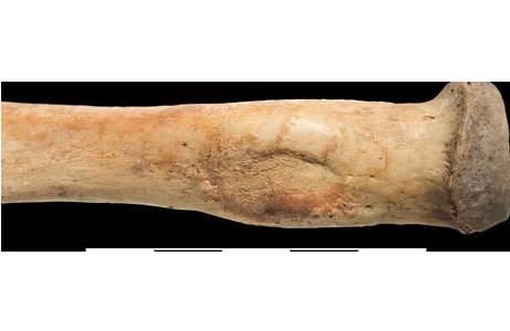 Leichte Ausprägung einer Muskelmarke an der Speiche (OSTEO17538); Foto: W. Reichmann, NHM Wien