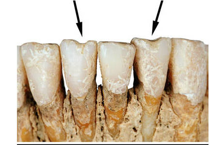 Die Einkerbungen an den unteren Schneidezähnen dieser 25-30-jährigen Frau (Inv. Nr. 25666) sind spezielle Abnützungsspuren, die z. B. durch regelmäßiges Halten einer Schnur oder eines Fadens mit den Zähnen entstanden sein könnten; Foto: W. Reichmann, NHM Wien