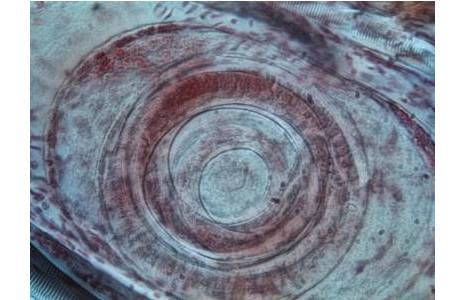 Muskeltrichine in Schweinemuskel, Mikrofoto; Foto: H. Sattmann, NHM Wien