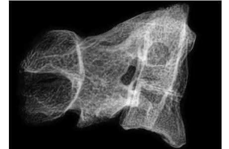 Seitenansicht, Röntgenbild; Verwachsene 2. und 3. Halswirbel (OSTE26075)