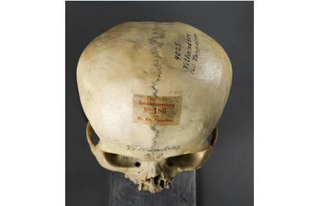 Schädel mit vorzeitigem Nahtverschluss der Kranznaht (Sutura coronalis) und nicht verschlossener Stirnnaht (Sutura metopica); Foto: W. Reichmann, NHM Wien
