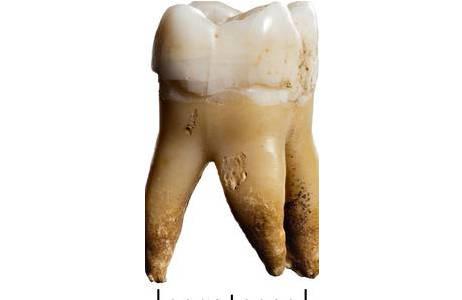 Für die Untersuchung von Isotopenverhältnissen eines Individuums wird meist ein Zahn herangezogen; Foto: W. Reichmann, NHM Wien