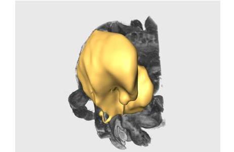 Rekonstruierter Kopf (grau) und Gehirn (gelb).