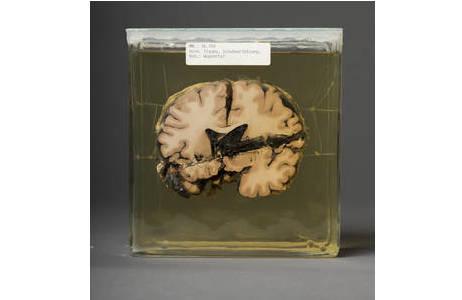 Feuchtpräparat eines Gehirns mit einer Schussverletzung; Foto: W. Reichmann, NHM Wien