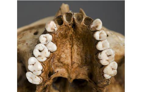 Oberkiefers mit Zahnfehlstellung